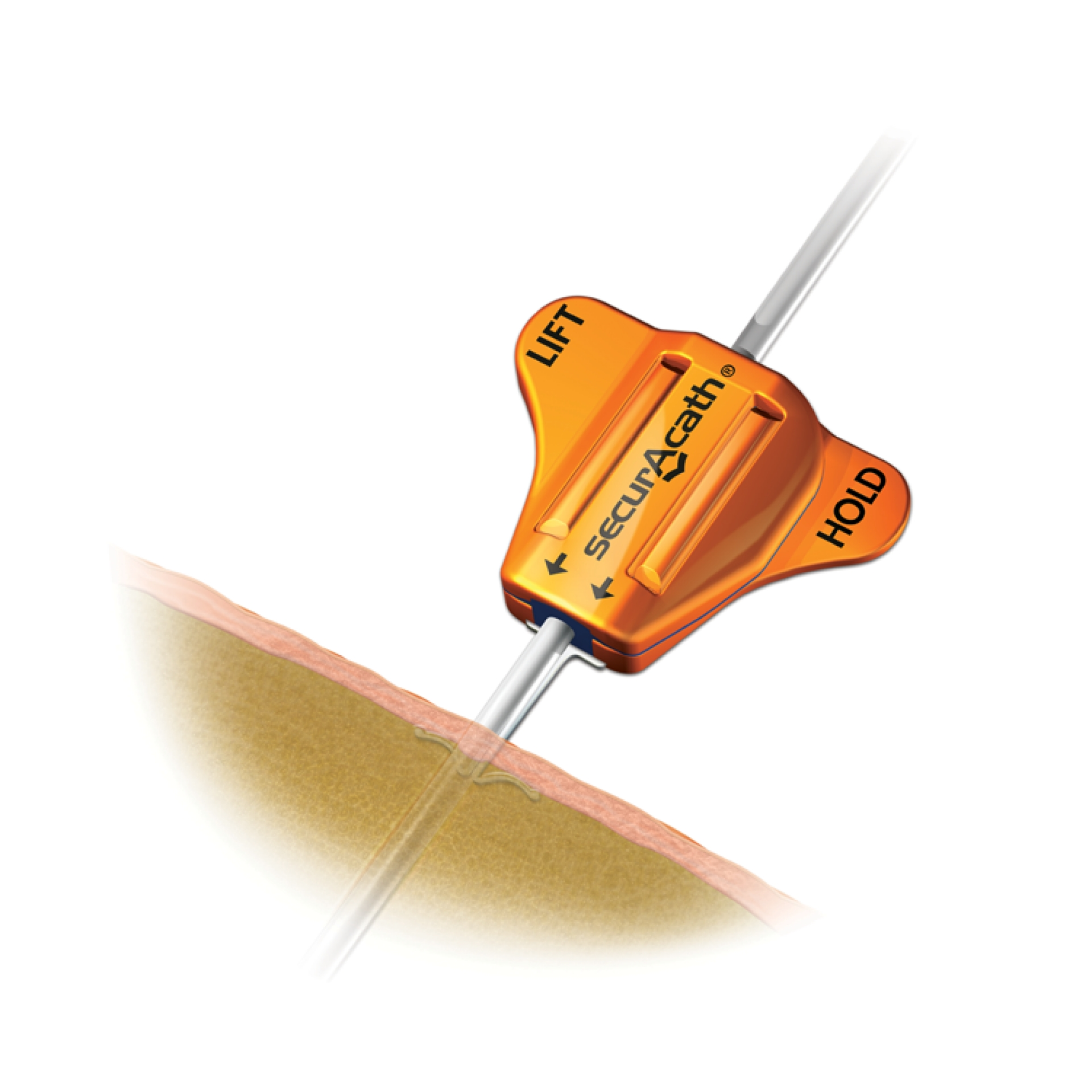 Subcutaneous Engineered Stabilization Device SecurAcath®